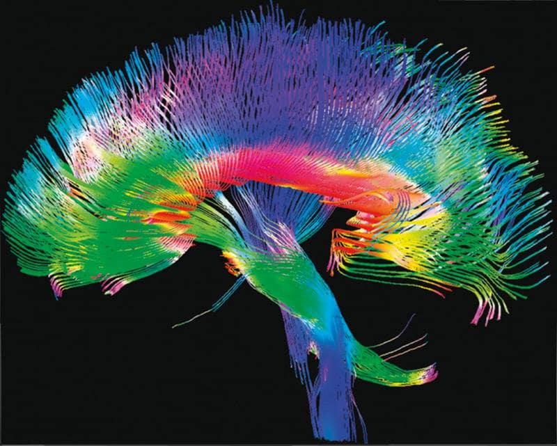 Mapa de conexiones cerebrales.