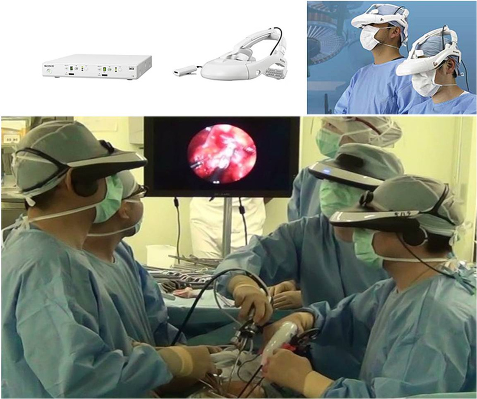 Cirugías endoscópicas: El sistema visor de Sony  evitará que los médicos tengan que ver una pantalla para operar.