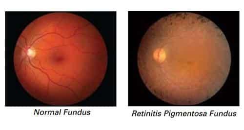 La retinitis pigmentosa es una enfermedad hereditaria y sería el problema para quienes consumen Viagra.