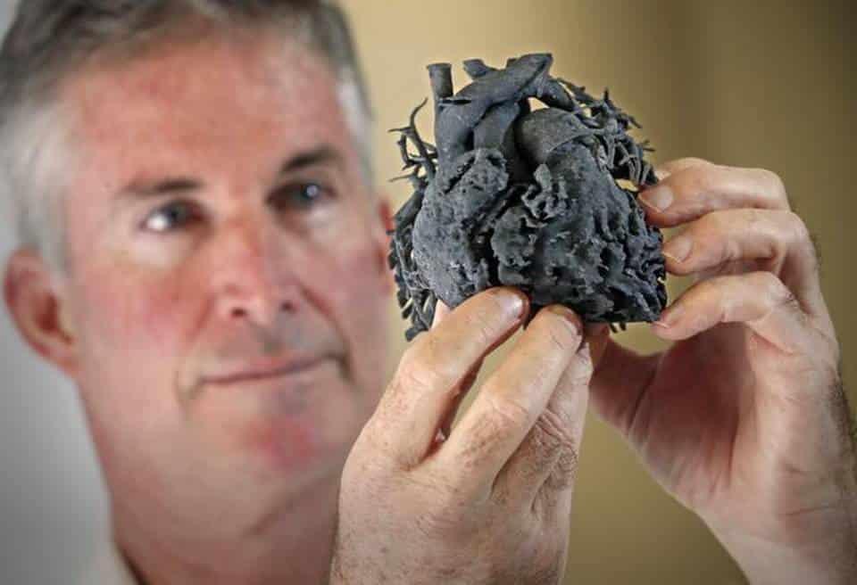 La réplica del corazón de una niña de 4 años, gracias a una impresora 3D.