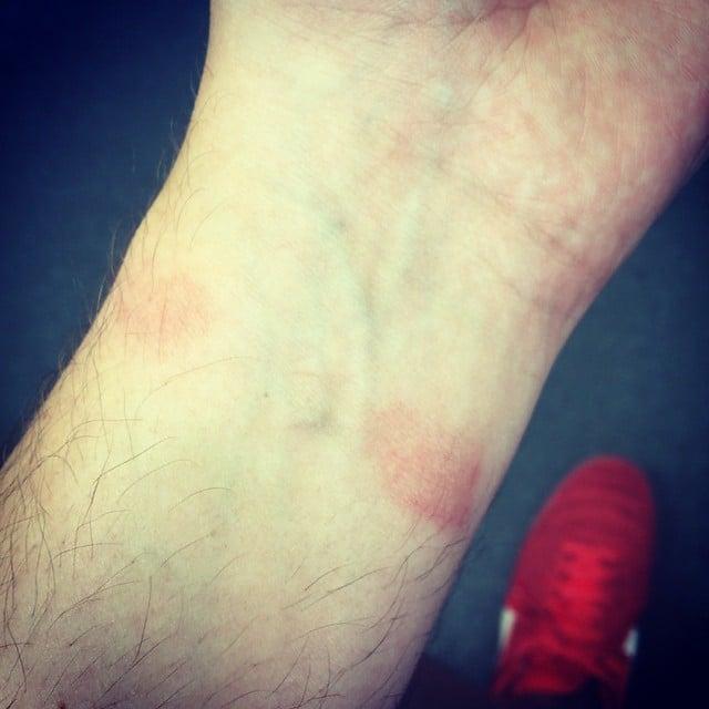 Paul Fabretti Apple Watch irritacion