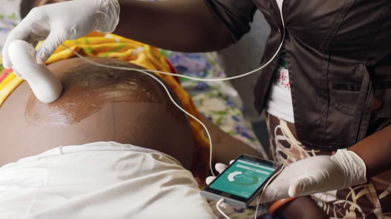 Suena imposible, pero sí es posible hacer un ultrasonido con un celular.