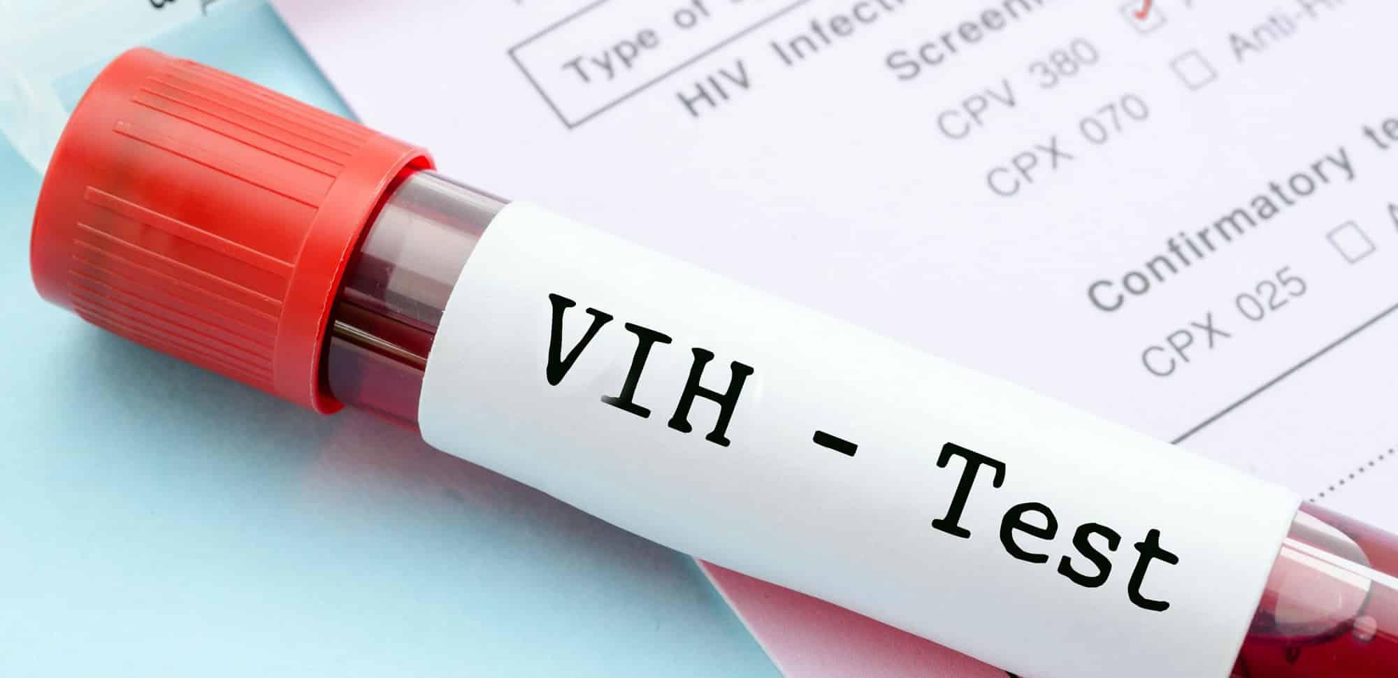 Anticuerpo podría destruir hasta el 99% de las cepas del VIH (SIDA).