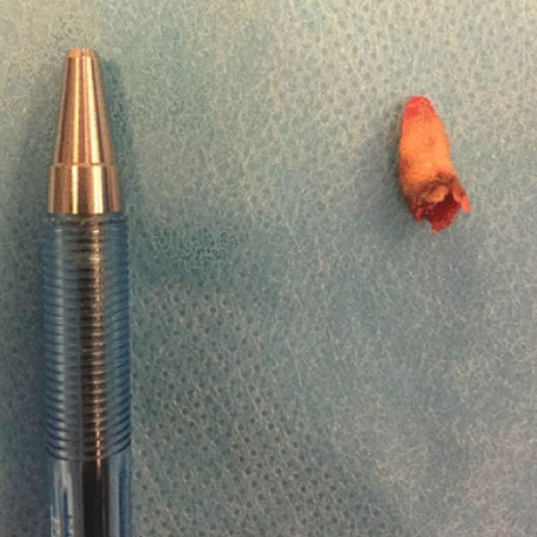 El extraño caso de un adulto que tenía un diente creciendo en su nariz.