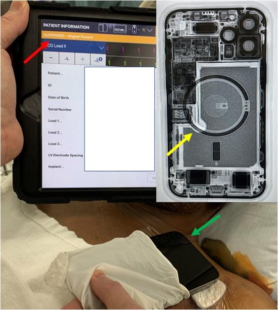 Apple envió una advertencia para alejar el iPhone 12 de dispositivos médicos como un marcapasos