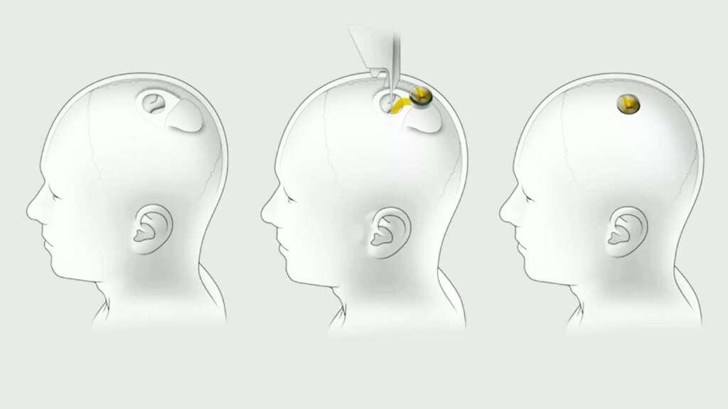Mejoramiento humano: Neuralink.